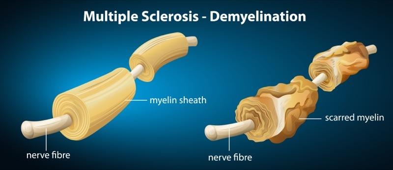 Differenze tra individuo sano e paziente affetto da sclerosi multipla