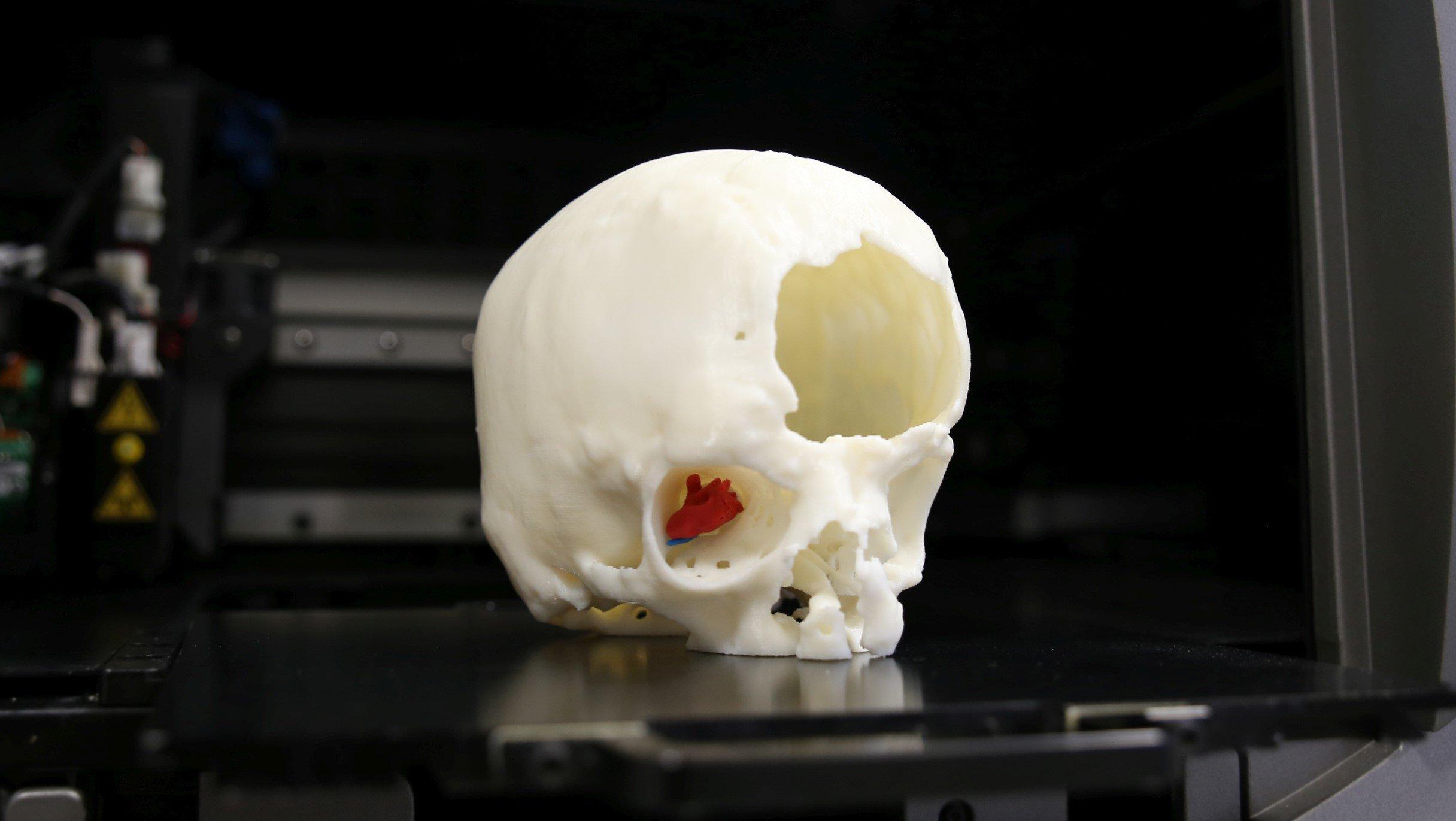 Cranio Stampa 3D/Meyer