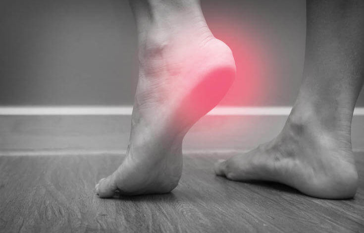 Closeup Of A Female Foot Heel Pain With Red Spot, Plantar Fasciitis
