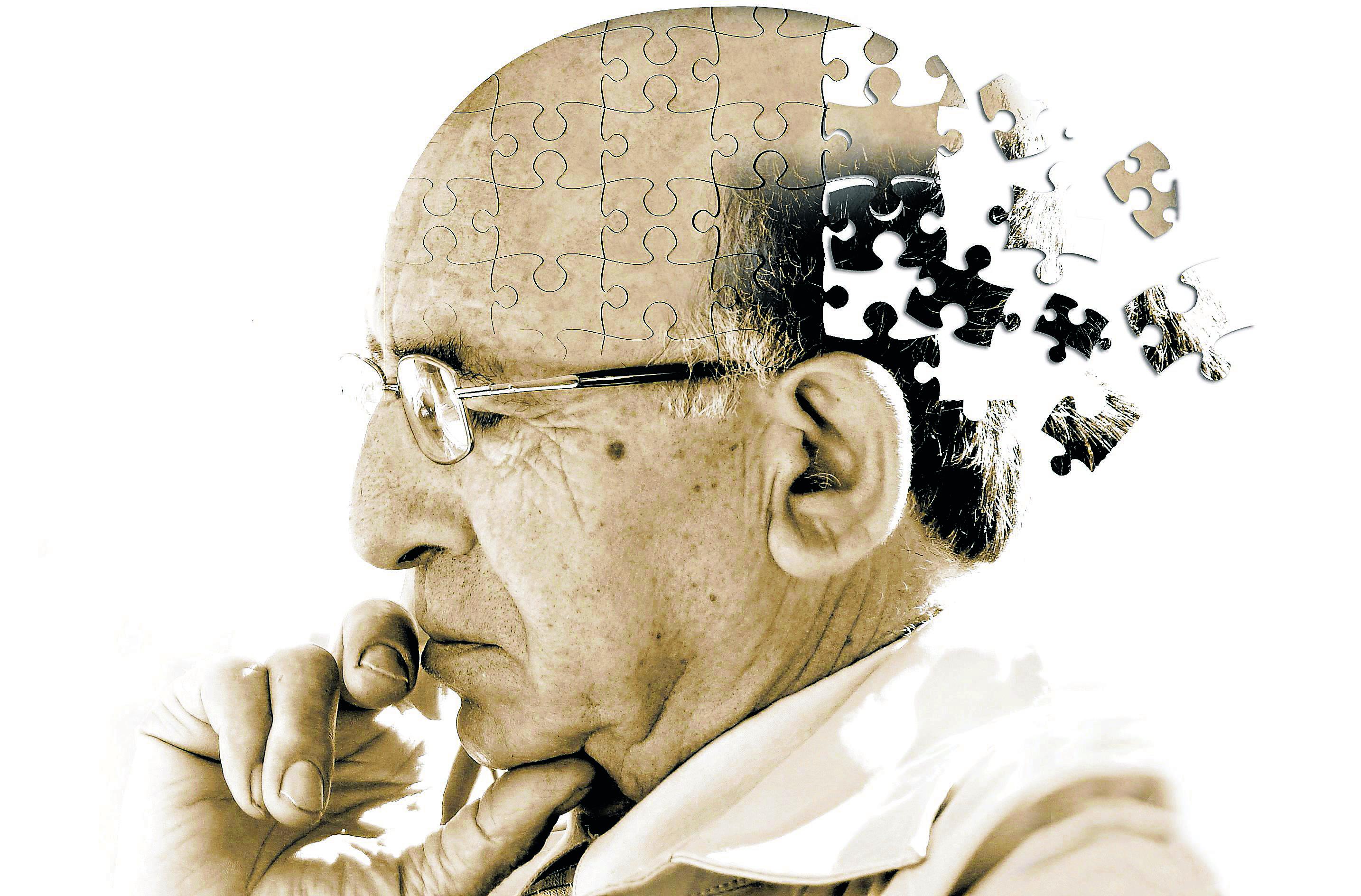 Alzheimer san severo