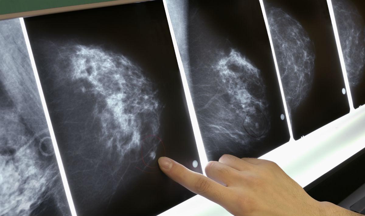 foggia tumore al seno