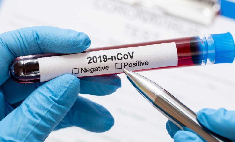 coronavirus-foggia