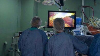 Photo of La Chirurgia Epatica e Biliopancreatica di Casa Sollievo compie 15 anni, raggiunti importanti risultati