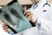 """Photo of Radiologia a domicilio, Tutolo: """"La radiologia direttamente a casa dei pugliesi è realtà"""""""